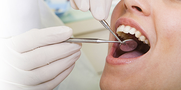 dental cleaning, oral health maintenance